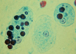 Trophozoites of Entamoeba histolytica with ingested erythrocytes.JPG