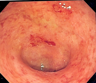 Ulcerative colitis inflammatory bowel disease that causes ulcers in the colon