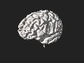 3DPX-002386 Atrophic Brain Nevit Dilmen.stl