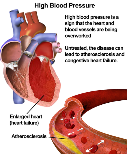 Illustration depicting the effects of high blood pressure Blausen 0486 HighBloodPressure 01.png
