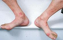 lesiones sarcoides de pierna con diabetes