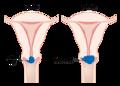 Diagram showing stage 1B cervical cancer CRUK 203-ar.png