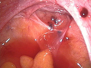 endometriotic lesions in the Douglas pouch and...