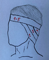 Ear bandage.png