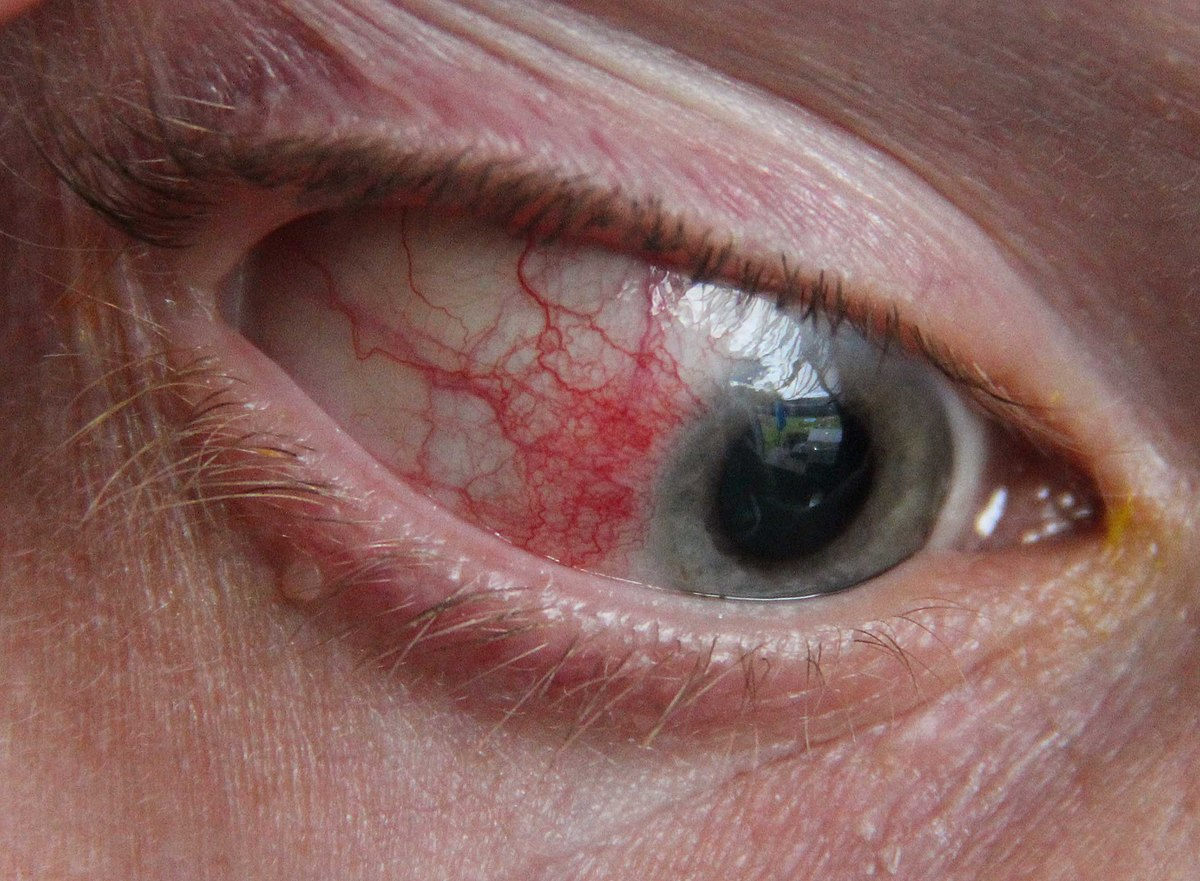 Episcleritis Wikipedia Simple Human Eye Diagram Of 1