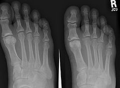 X-ray of foot, showing phalangeal fracture
