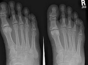Fifth metatarsal bone - Image: Footx