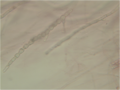 Fusarium chlamydospores 160X.png