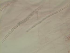 Fusarium - Fusarium chlamydospores