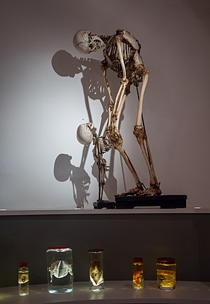 The skeleton of an abult and a toddler exhibited at the anatomy room of Groningen Universiteitsmuseum.