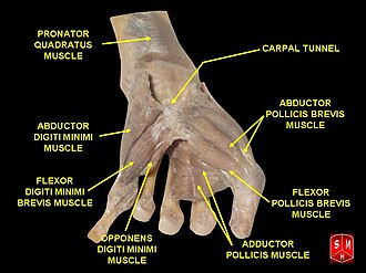 Opponens digiti minimi muscle of hand - Image: Hand dissection 8