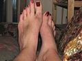 Human Feet - female - bruised.jpg