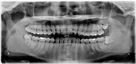 X-ray of the teeth and jaw showing the normal permanent teeth. The last two teeth on the patient's left (the dentist's right), 28 and 38 - the maxillary and mandibular third molars (popularly the upper and lower wisdom teeth) are severely impacted. Impacted wisdom teeth.jpg