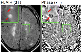Sclerosis multiplex MR képe