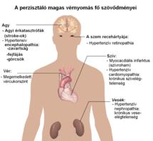 hipertónia törökül google a magas vérnyomásról