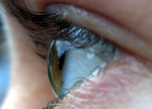 Peripheral vision - Side-view of the human eye, viewed approximately 90° temporal, illustrating how the iris and pupil appear rotated towards the viewer due to the optical properties of the cornea and the aqueous humor.
