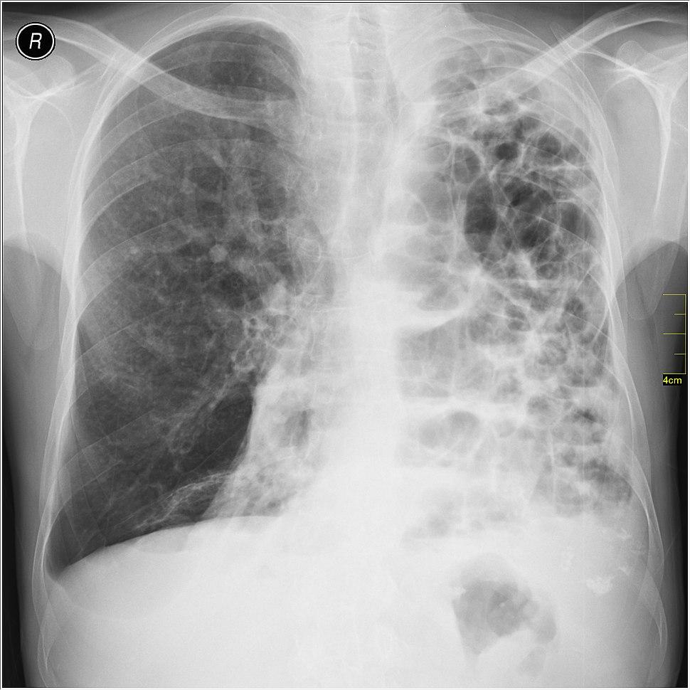 Medical X-Ray imaging WFH07 nevit