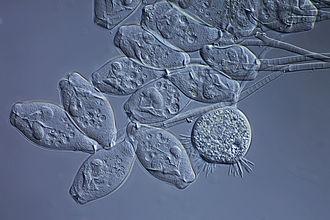 Activated sludge - Activated sludge under the microscope