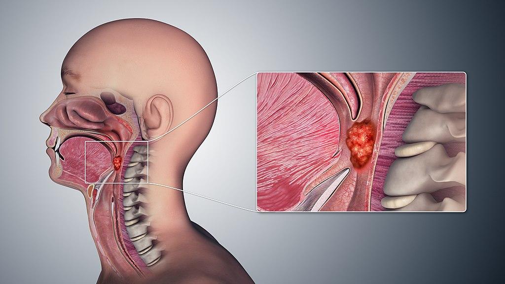 Throat cancer from hpv virus. HPV can cause throat cancer hpv kesin tedavisi bulundu