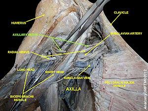 Axillary nerve - Image: Slide 2dj
