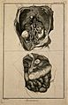 The anatomy of the abdomen, showing the kidneys, the intesti Wellcome V0007831ER.jpg