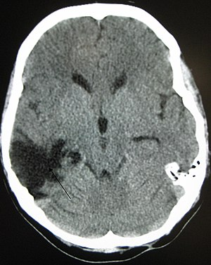 A CT of the head years after a traumatic brain...