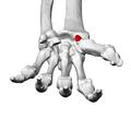 Tubercle of trapezium (left trapezium)04 distal view.png