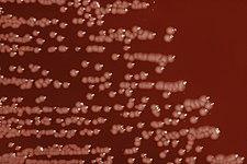Yersinia enterocolitica na krevním agaru
