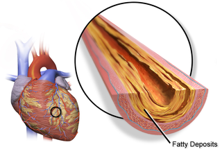 Coronary artery disease Disease characterized by plaque building up in the arteries of the heart