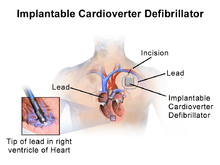 Illustration of Implantable Cardioverter Defibrillator (ICD)