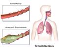 Bronchiectasis.png