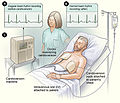 Cardioversion.jpg