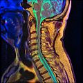 Cervical spine MRI T1FSE T2frFSE STIR 07.jpg