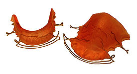 Hawley retainers are the most common type of retainers. This picture shows retainers for the top and bottom of the mouth.