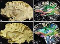 Comparison between anatomic dissections using the fiber dissection technique and tractography PMC3640224 figure F4.jpg