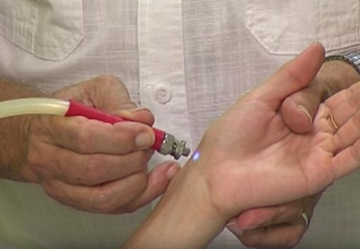 Cromountura - aplicación de luz azul en el punto 60 del canal del pulmón durante una sesión de cromopuntura