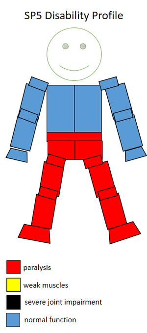 F55 (classification) - Functional profile of a wheelchair sportsperson in the F5 class.