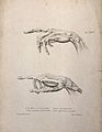 Muscles and tendons of the hand; two figures of pointing éco Wellcome V0008185ER.jpg