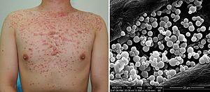 Malassezia - Image: Pityrosporum folliculitis 2