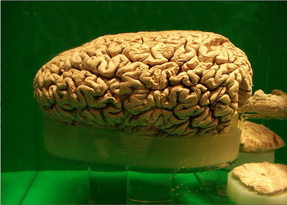 Preserved sperm whale brain