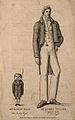 Simon Paap, a dwarf and James Toller, a giant. Line engravin Wellcome V0007355.jpg
