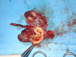 Thyroid gland tumour.jpg