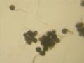 Ulocladium conidiophores 160X (1).png