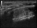 Ultrasound Scan ND 084648 0854040 cr.png