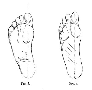 Why the Shoe Pinches 0025.jpg