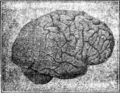 1907 image of a brain (Labour and Childhood).png