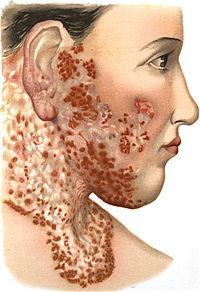 An introduction to dermatology (1905) Lupus vulgaris 2.jpg