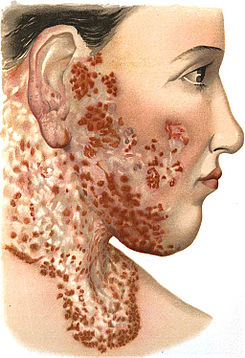An introduction to dermatology (1905) Lupus vulgaris 2.jpg
