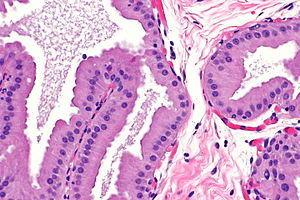 Apocrine - Micrograph showing apocrine metaplasia of the breast. H&E stain.