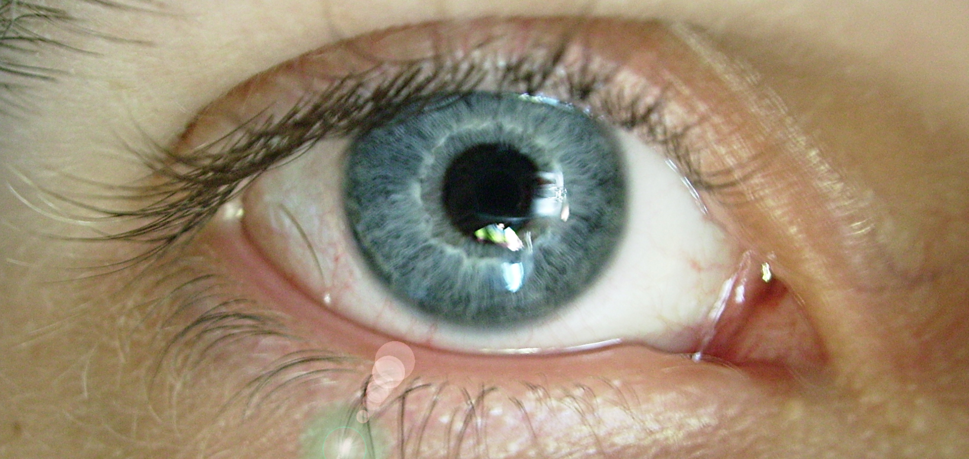 Blue eye Stephen
